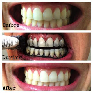 cara alami memutihkan gigi dengan arang kayu f8359571b4